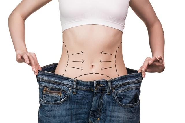 Pessoa magra mostrando as marcas depois de perder o peso com uma cirurgia bariátrica ! Quem pode realizar a cirurgia bariátrica