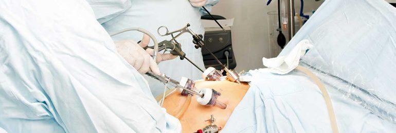 Quando a laparoscopia é mais indicada?