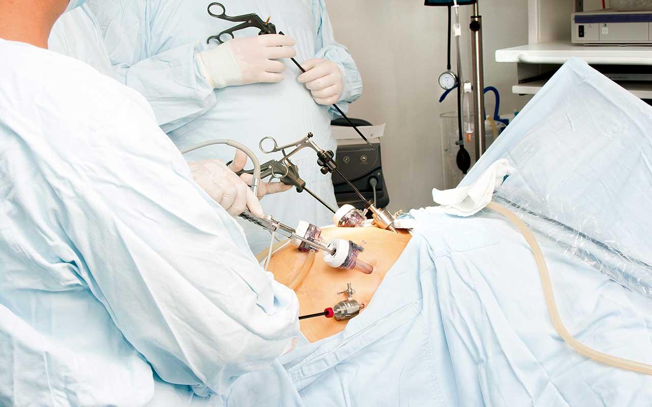 Mesa cirúrgica com médicos | Quando a laparoscopia é mais indicada?
