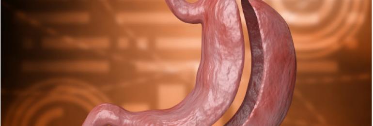 Cirurgia bariátrica: esclareça as principais dúvidas